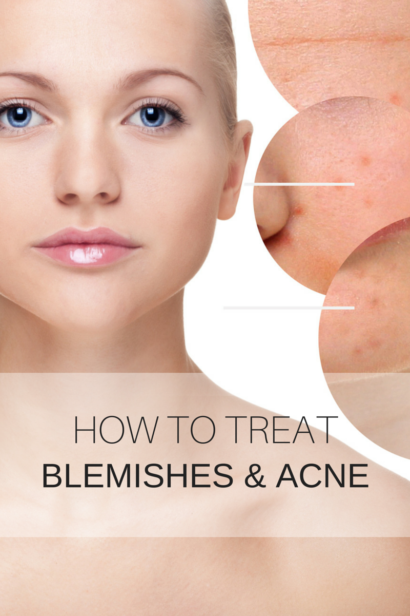 blemishes-and-mild-acne